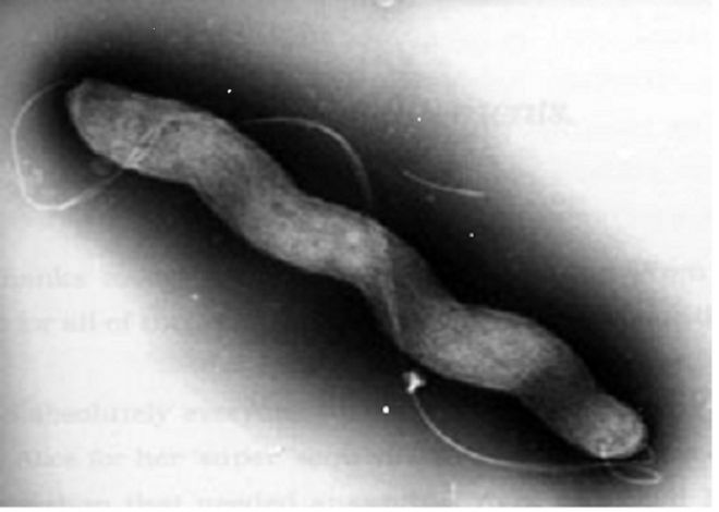 Fig. 2. Electron micrograph of Campylobacter jejuni showing a typical spiral shape of the cell and a long flagellum required for bacterial motility