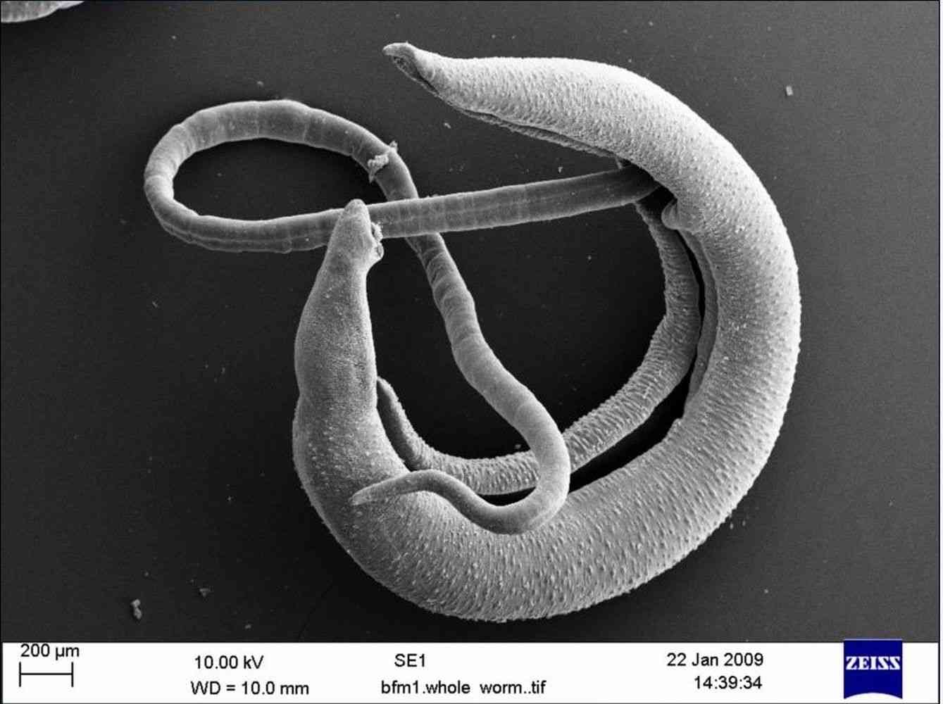 Scanning electron micrograph of Schistosoma bovis - an agent of ruminant schistosomiasis - Hybrid forms of S. bovis-S. haematobium can infect humans and are reported in West Africa and Corsica.